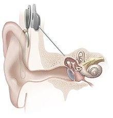 Cochlea-Implant